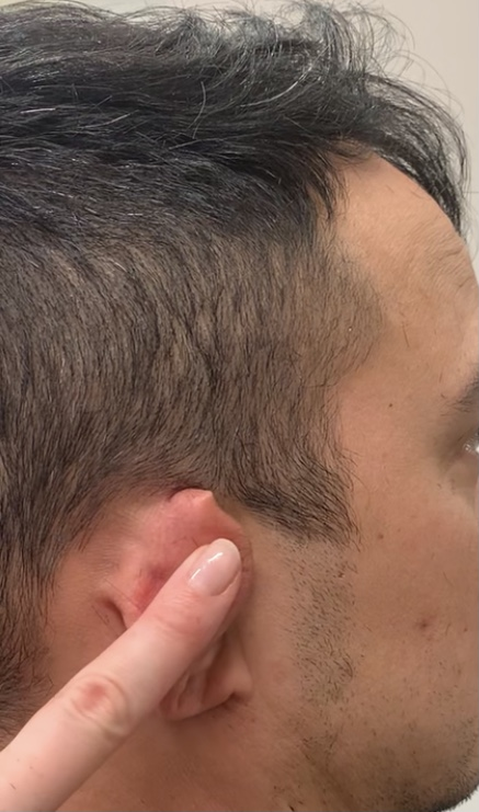 A person folds the ear forward to hold it out of the way.
