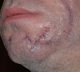 A person with large scars on their cheeck and chin.