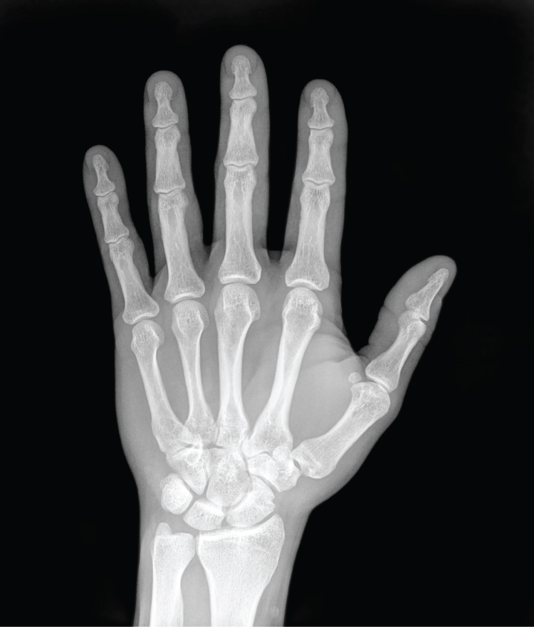 This photo shows an X ray image of the palmar surface of the left hand. The bones appear bright white against a gray outline of the skin of the hand. The four segments of the finger bones are clearly visible, as well as the collection of round bones that compose the wrist and connect the hand to the two bones of the forearm.