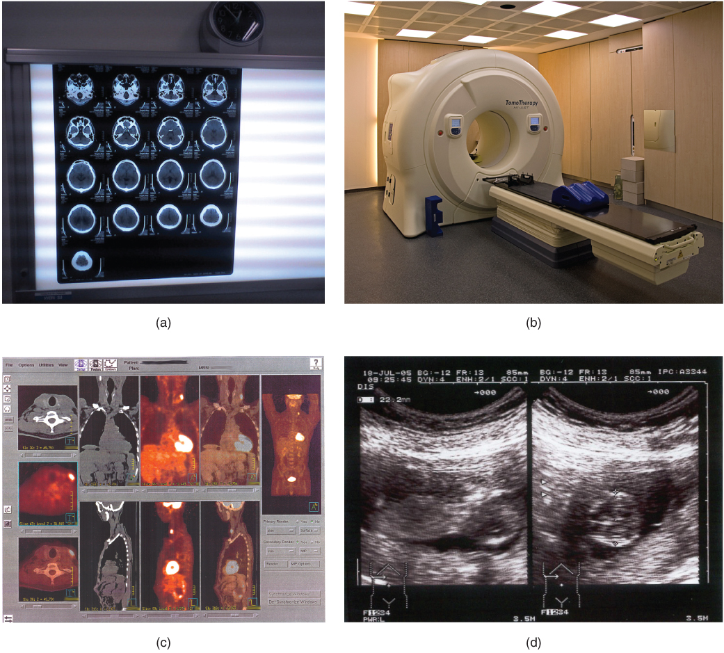 These photos shows four types of imaging equipment. Photo A, the results of a CT scan, shows 17 different transverse views of the skull, each taken at a different depth along the superior-inferior axis. The images are translucent, similar to an X ray, and are viewed on a light board. Photo B shows an MRI machine, which is a large drum into which lying patients enter via a conveyor belt. Photo C shows computer images of the body taken with PET scans. This produces anterior, lateral, posterior, and transverse views of the body that reveal the structure of the internal organs. Photo D shows an ultrasound readout, which is black and white. The image depicts solid tissues as light areas and empty space as dark areas. Some of the features of a young fetus can be seen in the empty space at the center of the image. The space containing the fetus is surrounded by the solid tissue of the uterus.