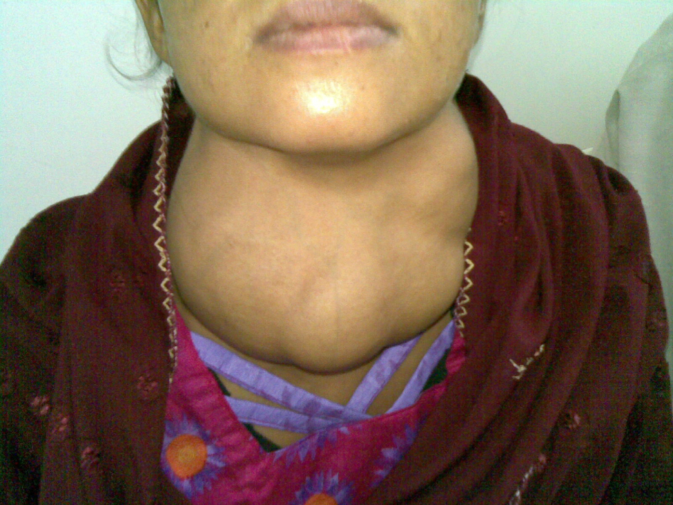 This photo shows a woman with a goiter, which is an extreme, irregular swelling on the anterior side of the neck.