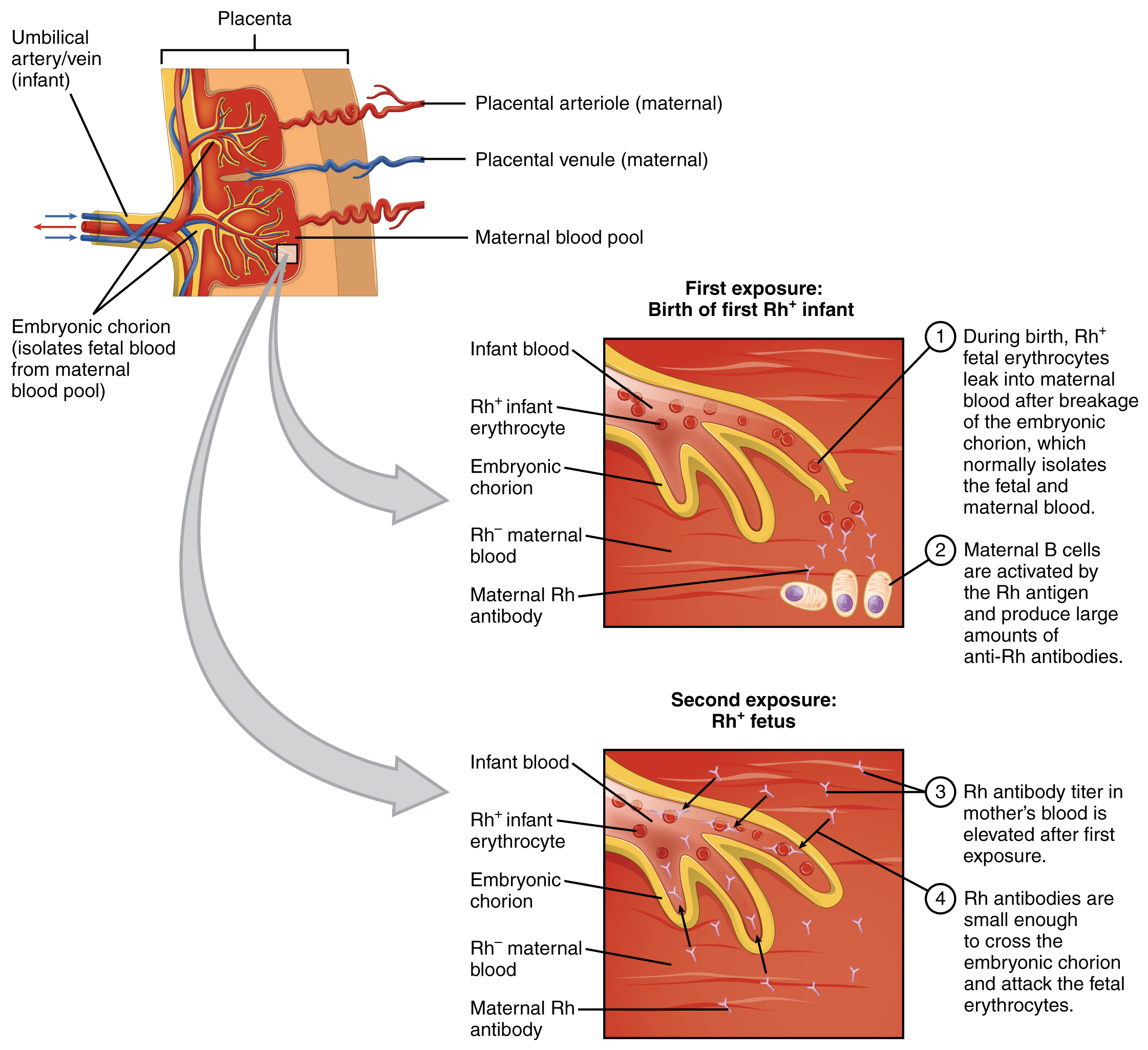 This figure shows an umbilical artery and vein passing through the placenta on the top left. The top right panel shows the first exposure to Rh+ antibodies in the mother. The bottom right panel shows the response when the second exposure in the form of another fetus takes place. Textboxes detail the steps in each process.