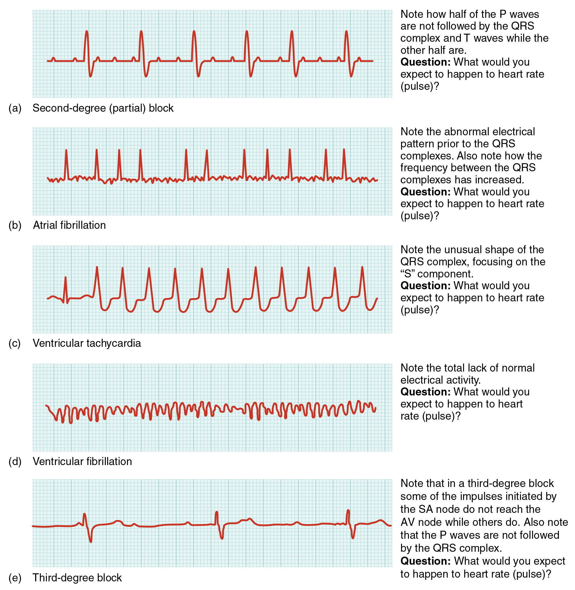 Tracingreadingwiringdiagrams 192 Cardiac Muscle And Electrical Activity Anatomy Physiology In This Image The Qt Cycle For Different Heart Conditions Are Shown From Top To