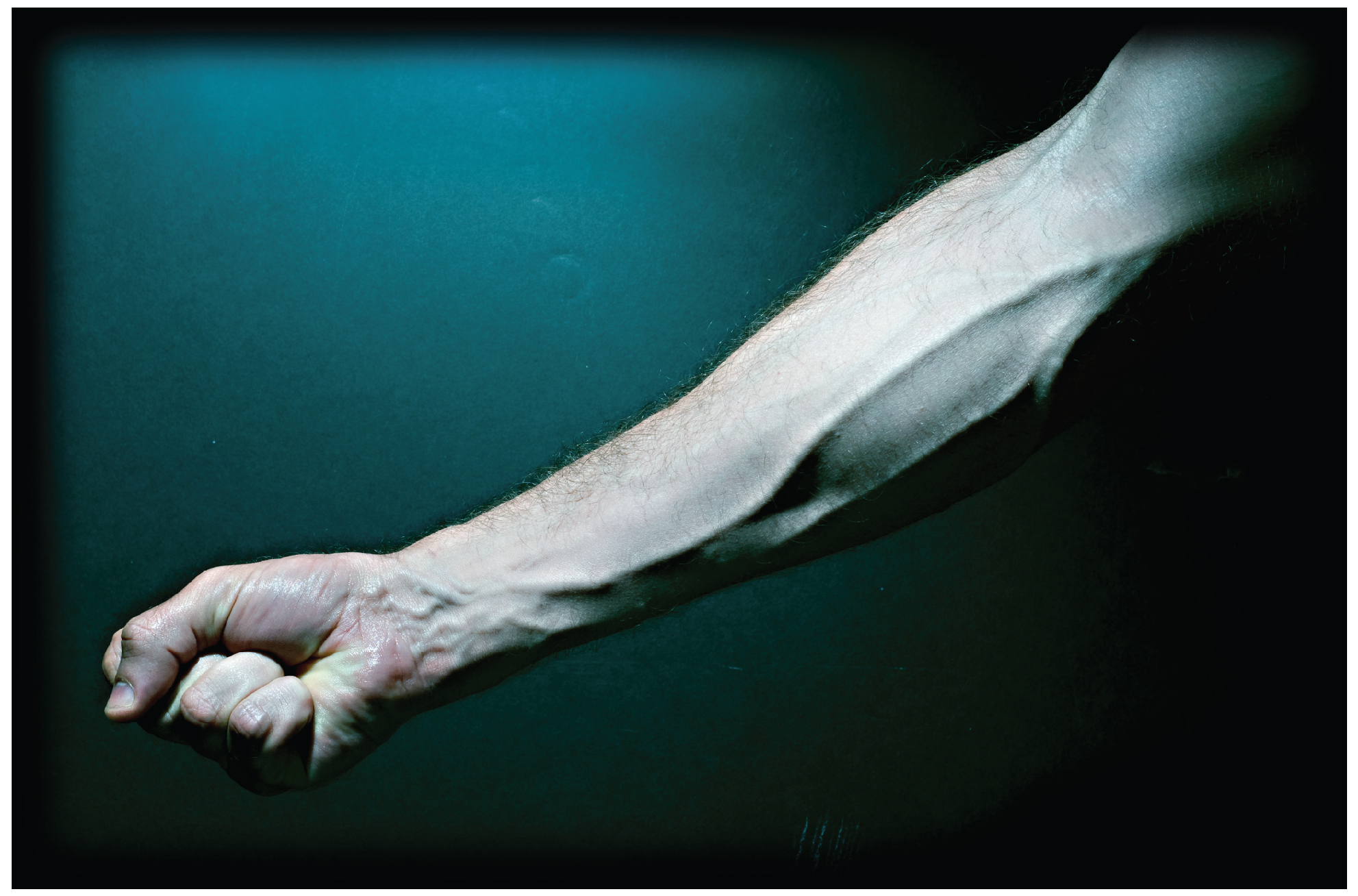 This photo shows a forearm with the veins bulging.