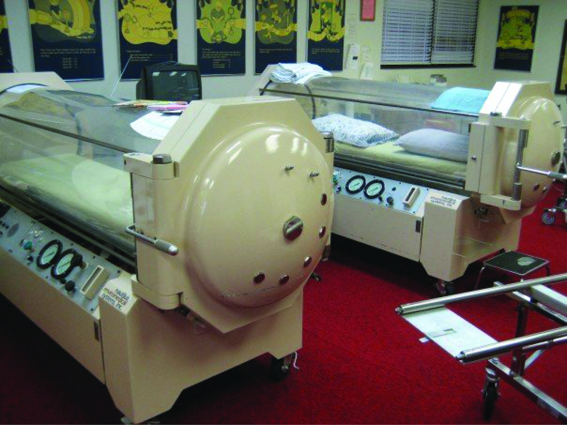 This photo shows two hyperbaric chambers.