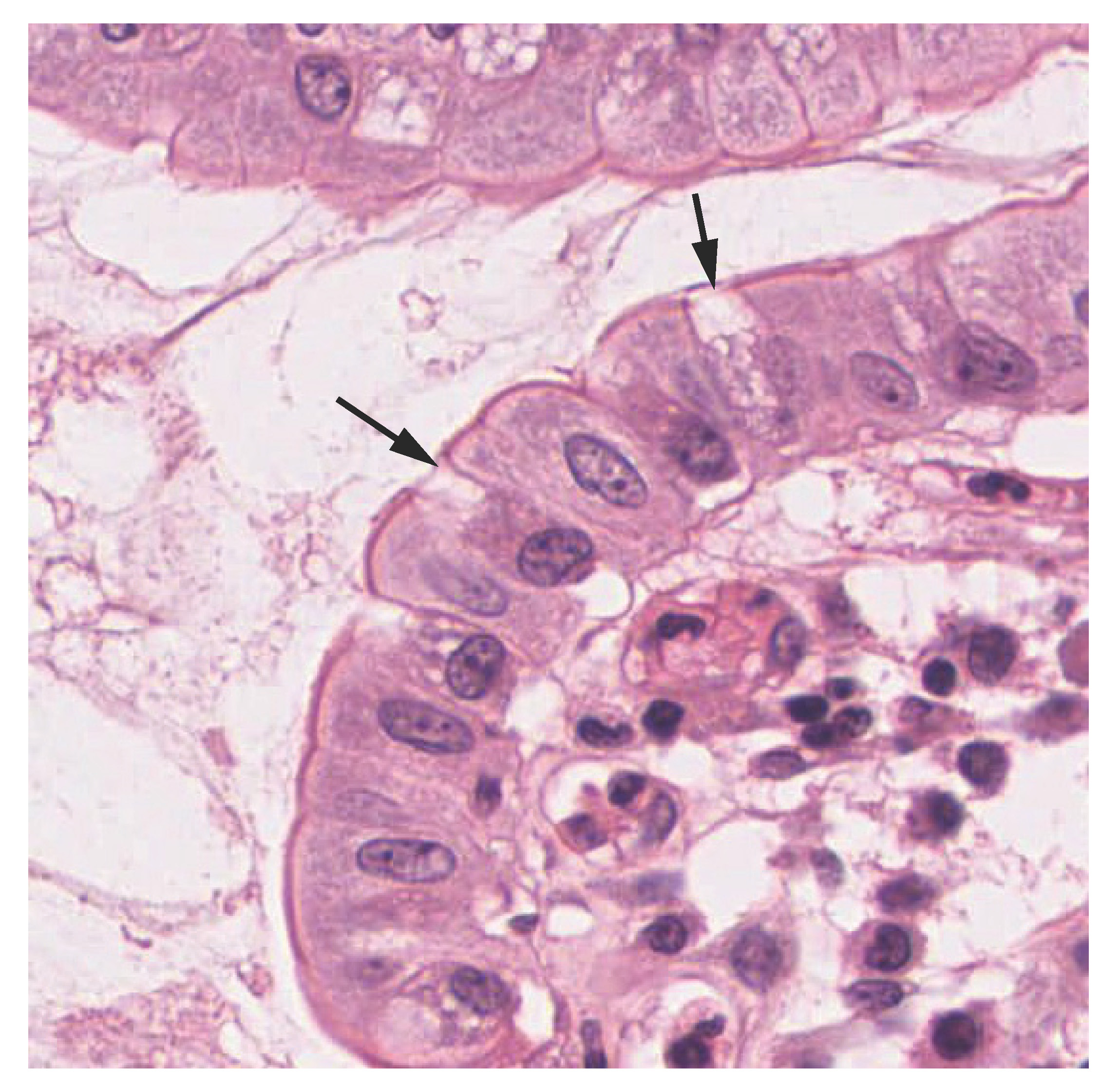 The second image is a micrograph of the innermost lining of the small intestine. This innermost lining is a simple columnar epithelium, with a single layer of rectangular cells oriented in a line. Occasionally, the line of epithelial cells is interrupted by a goblet cell. Goblet cells are thinner than the epithelial cells and appear roughly pill shaped. In this micrograph, the cells did not stain as darkly as the epithelial cells.