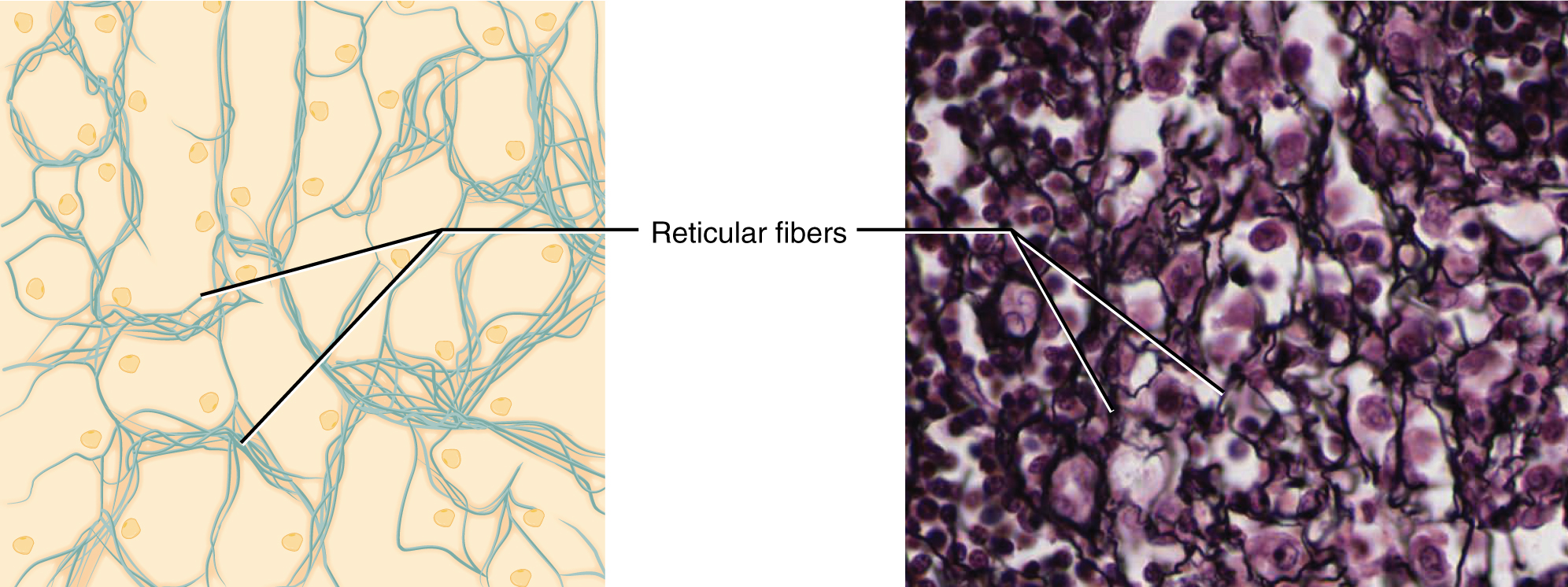410_Reticular_Tissue 4 3 connective tissue supports and protects anatomy and physiology