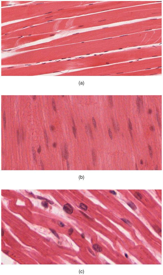 10 1 Overview Of Muscle Tissues  U2013 Anatomy And Physiology