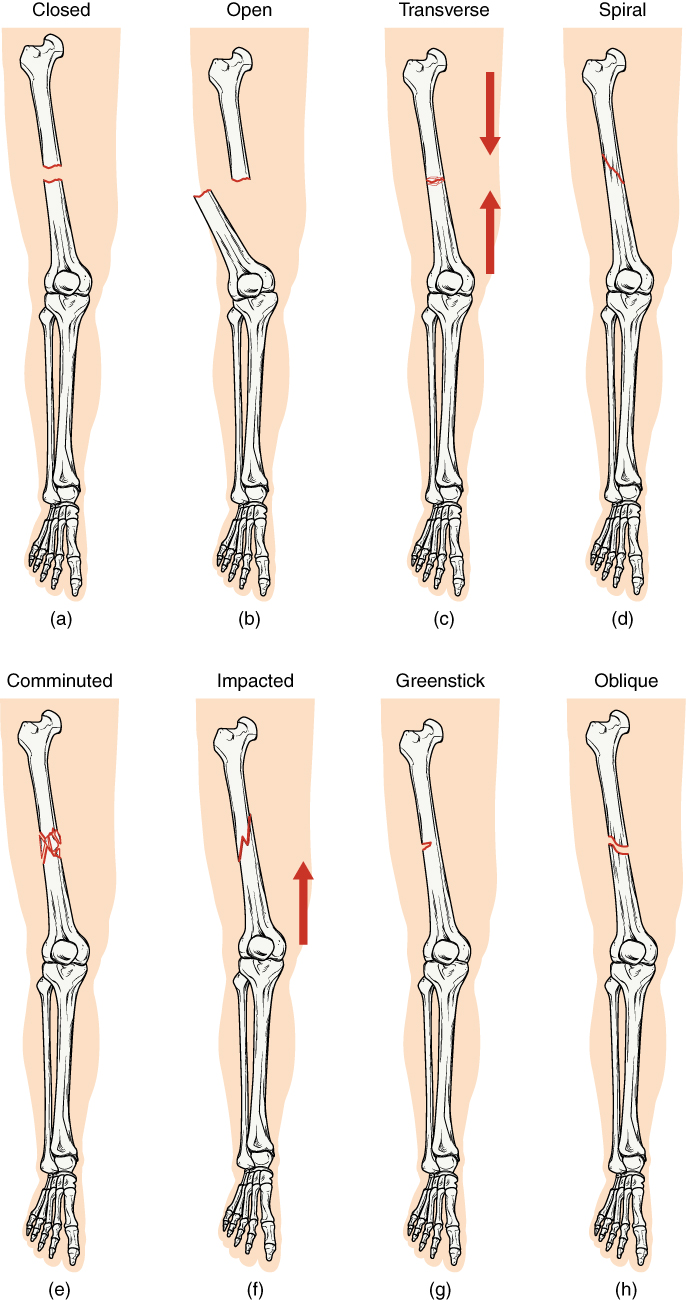 6.5 Fractures: Bone Repair – Anatomy and Physiology