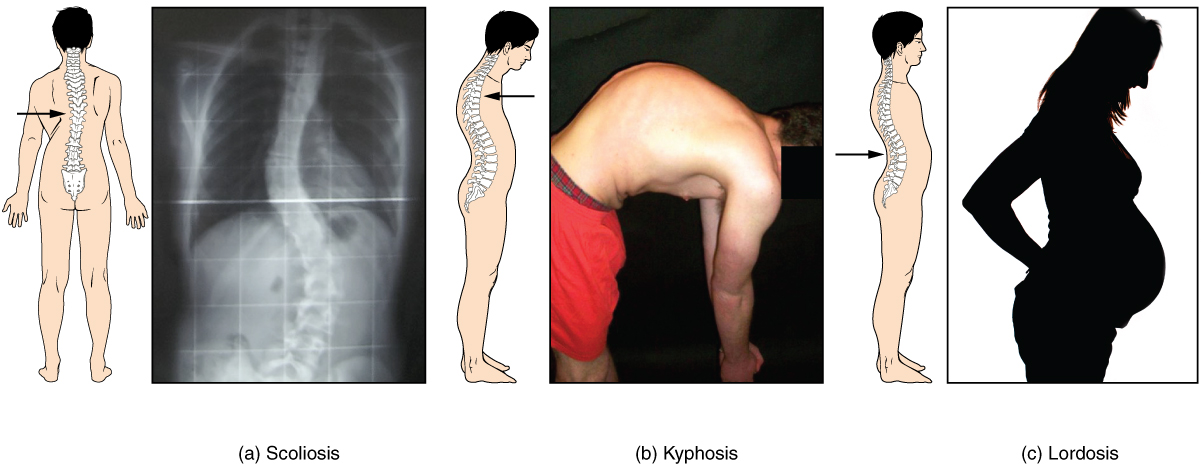 This image shows the changes to the abnormal curves of the vertebral columns in different diseases. The left panel shows the change in the curve of the vertebral column in scoliosis, the middle panel shows the change in the curve of the vertebral column in kyphosis, and the right panel shows the change in the curve of the vertebral column in lordosis.