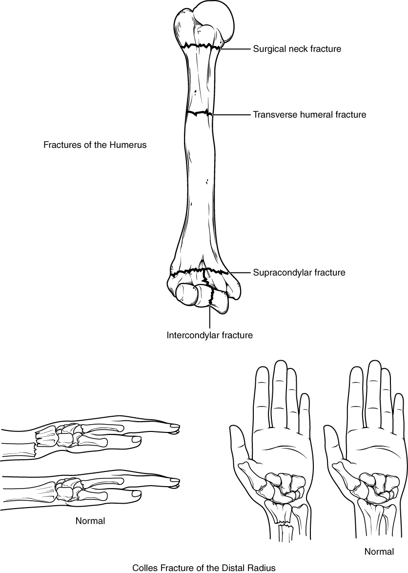8 2 Bones of the Upper Limb – Anatomy and Physiology
