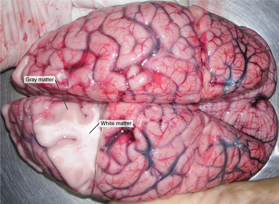 This photo shows an enlarged view of the dorsal side of a human brain. The right side of the occipital lobe has been shaved to reveal the white and gray matter beneath the surface blood vessels. The white matter branches though the shaved section like the limbs of a tree. The gray matter branches and curves on outside of the white matter, creating a buffer between the outer edges of the occipital lobe and the internal white matter.