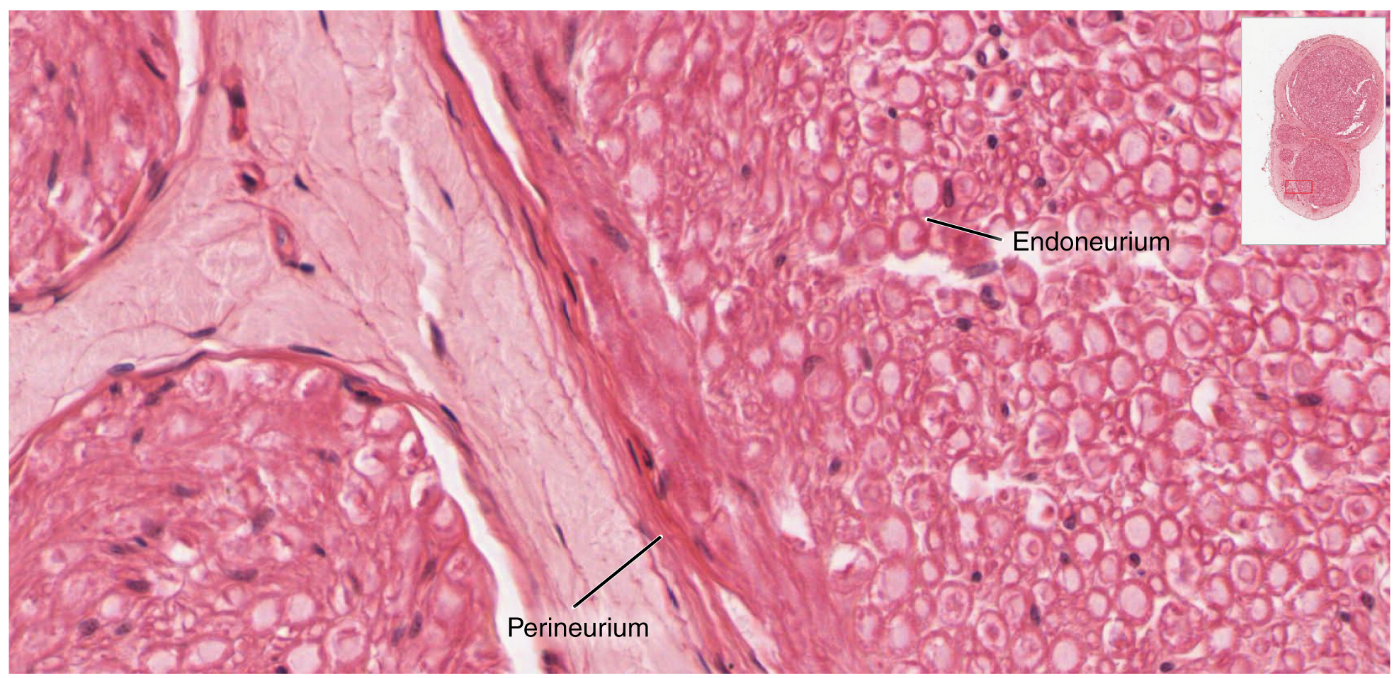 This micrograph shows a magnified view of the nerve. The perineurium and the endoneurium are labeled.