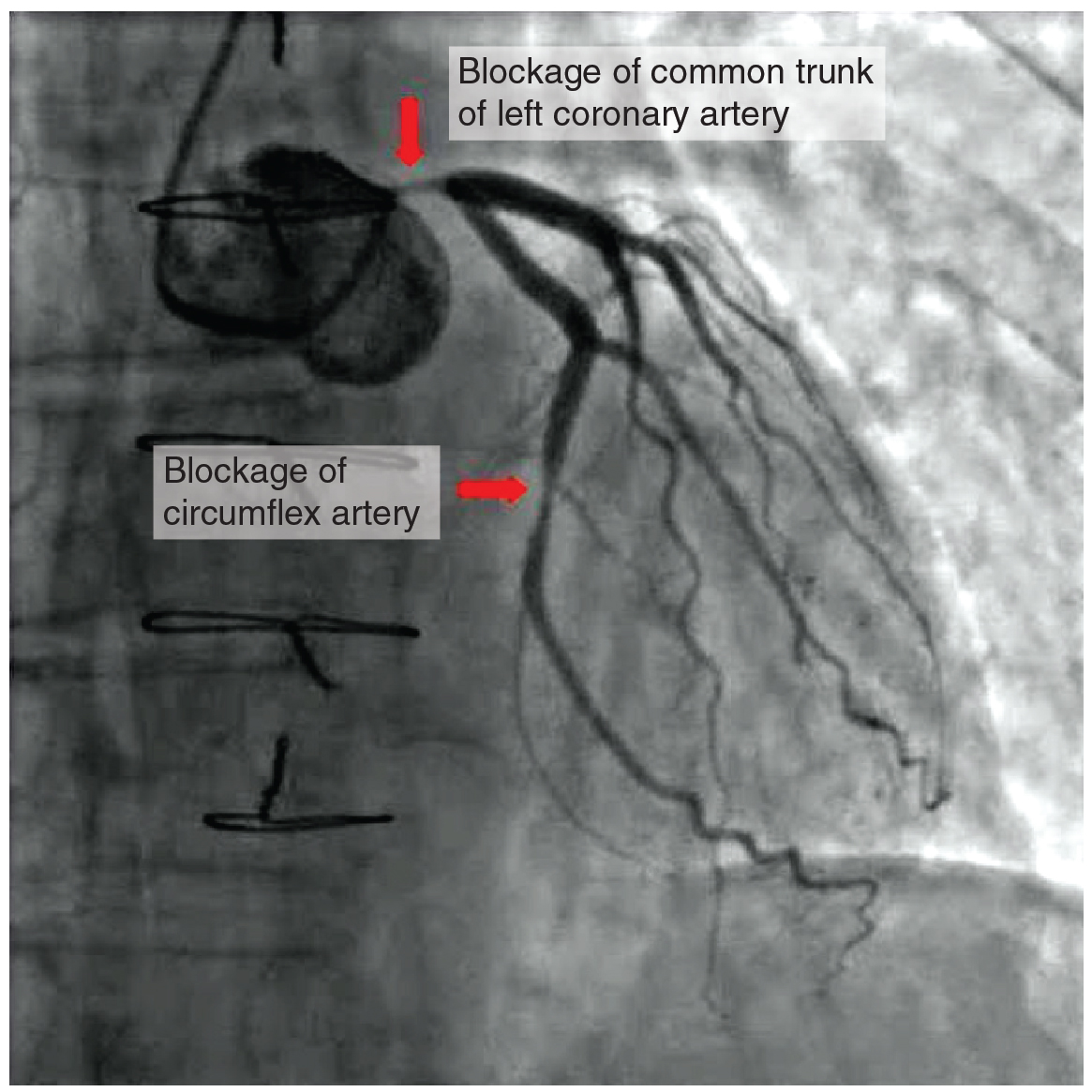 This photo shows a blockage in the coronary artery and in the circumflex artery.