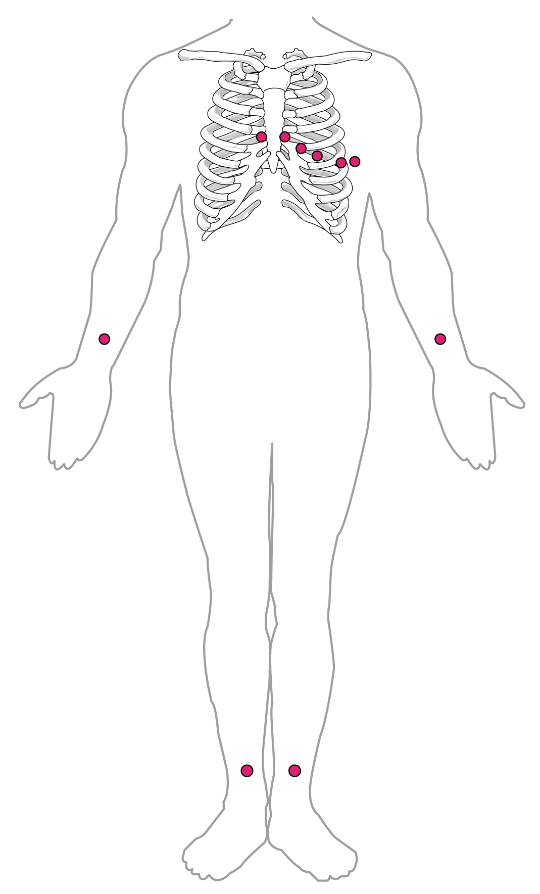 This diagram shows the points where electrodes are placed on the body for an ECG.
