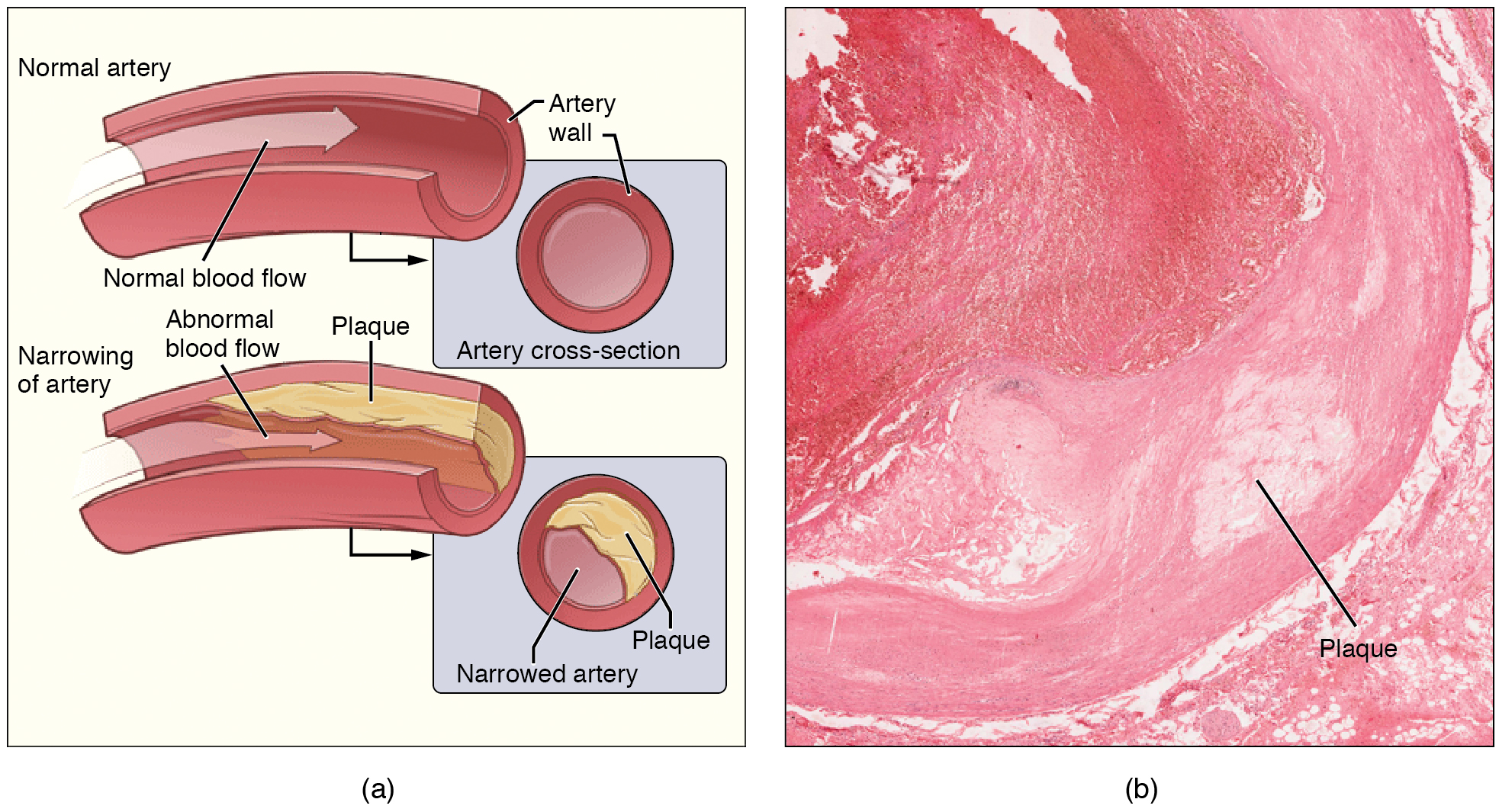 The left panel shows the cross-section of a normal and a narrowed artery. The right panel shows a micrograph of an artery with plaque in it.