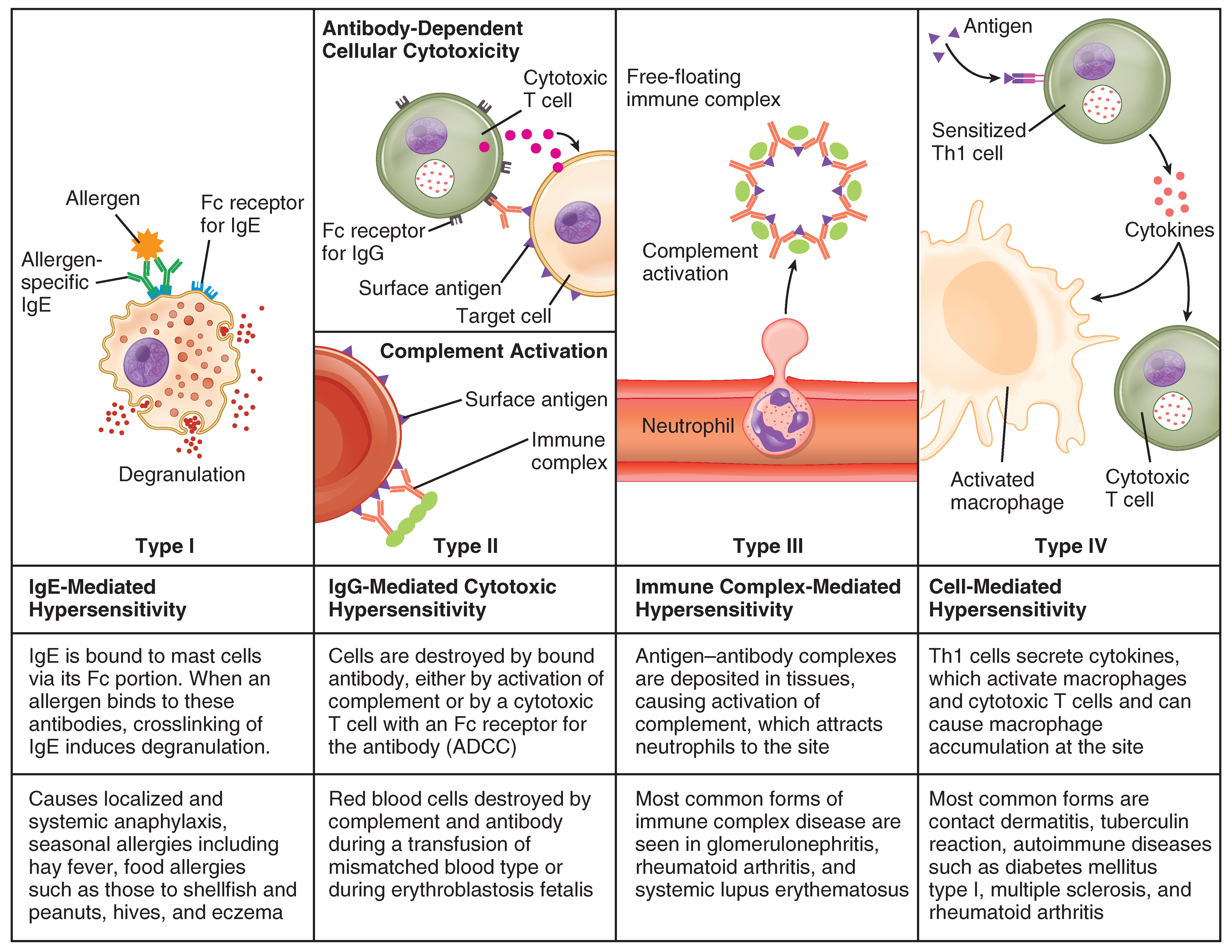 This table describes different types of hypersensitivity. In Type I (IgE-Mediated Hypersensitivity), IgE is bound to mast cells via its Fc portion. When an allergen binds to these antibodies, crosslinking of IgE induces degranulation. Type I causes localized and systemic anaphylaxis, seasonal allergies including hay fever, food allergies such as those to shellfish and peanuts, hives, and eczema. In Type II (IgG-Mediated Hypersensitivity), cells are destroyed by bound antibody, either by activation of complement or by a cytotoxic T cell with an Fc receptor for the antibody (ADCC). Examples are when red blood cells are destroyed by complement and antibody during a transfusion of mismatched blood types or during erythroblastosis fetalis. In Type III (Immune Complex-Mediated Hypersensitivity), antigen-antibody complexes are deposited in tissues, causing activation of complement, which attracts neutrophils to the site. Most common forms of immune complex disease are seen in glomerulonephritis, rheumatoid arthritis, and systemic lupus erythematosus. In Type IV (Cell-Mediated Hypersensitivity), Th1 cells secrete cytokines, which activate macrophages and cytotoxic T cells and can cause macrophage accumulation at the site. Most common forms are contact dermatitis, tuberculin reaction, and autoimmune diseases such as diabetes mellitus type I, multiple sclerosis, and rheumatoid arthritis.