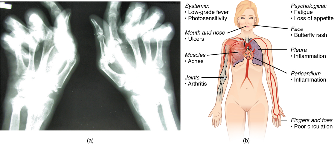 The left panel of this figure shows an x-ray image of a person's hand with rheumatoid arthritis, and the right panel of this figure shows a woman's body with labels showing the different responses in the body when the patient suffers from lupus.