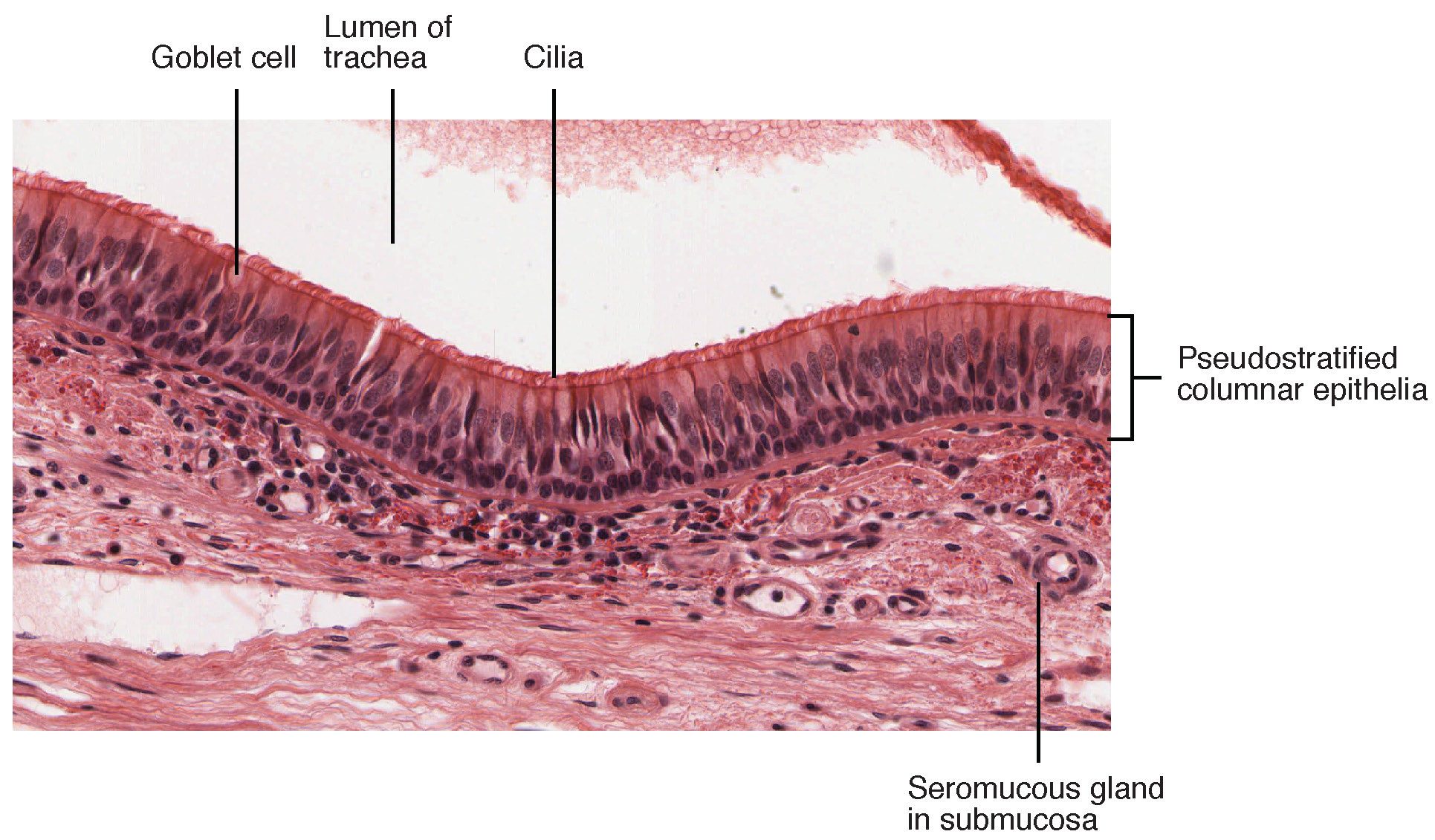This figure shows a micrograph of pseudostratified epithelium.