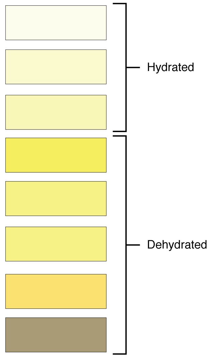 This color chart shows different shades of yellow and associates each shade with hydration or dehydration.