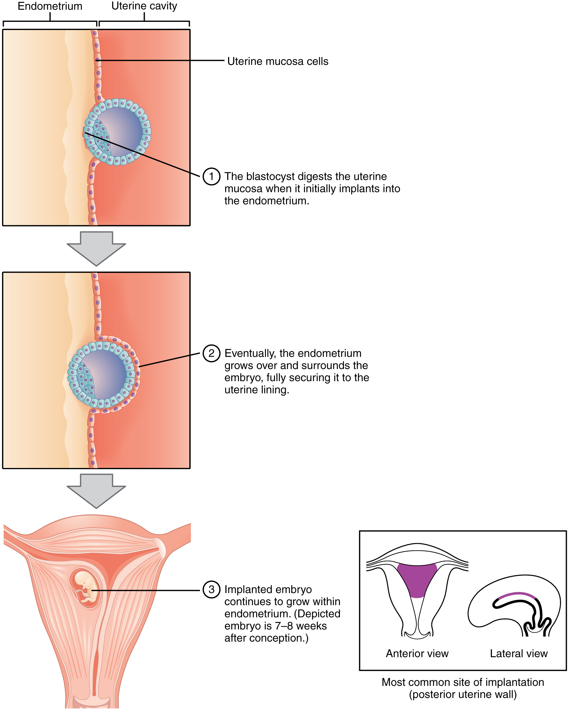 This figure shows the different steps during implantation. The top panel shows how the blastocyst burrows into the endometrium. The middle panel shows the blastocyst completely surrounded by the endometrium. The bottom panel shows the implanted embryo growing in the uterus.
