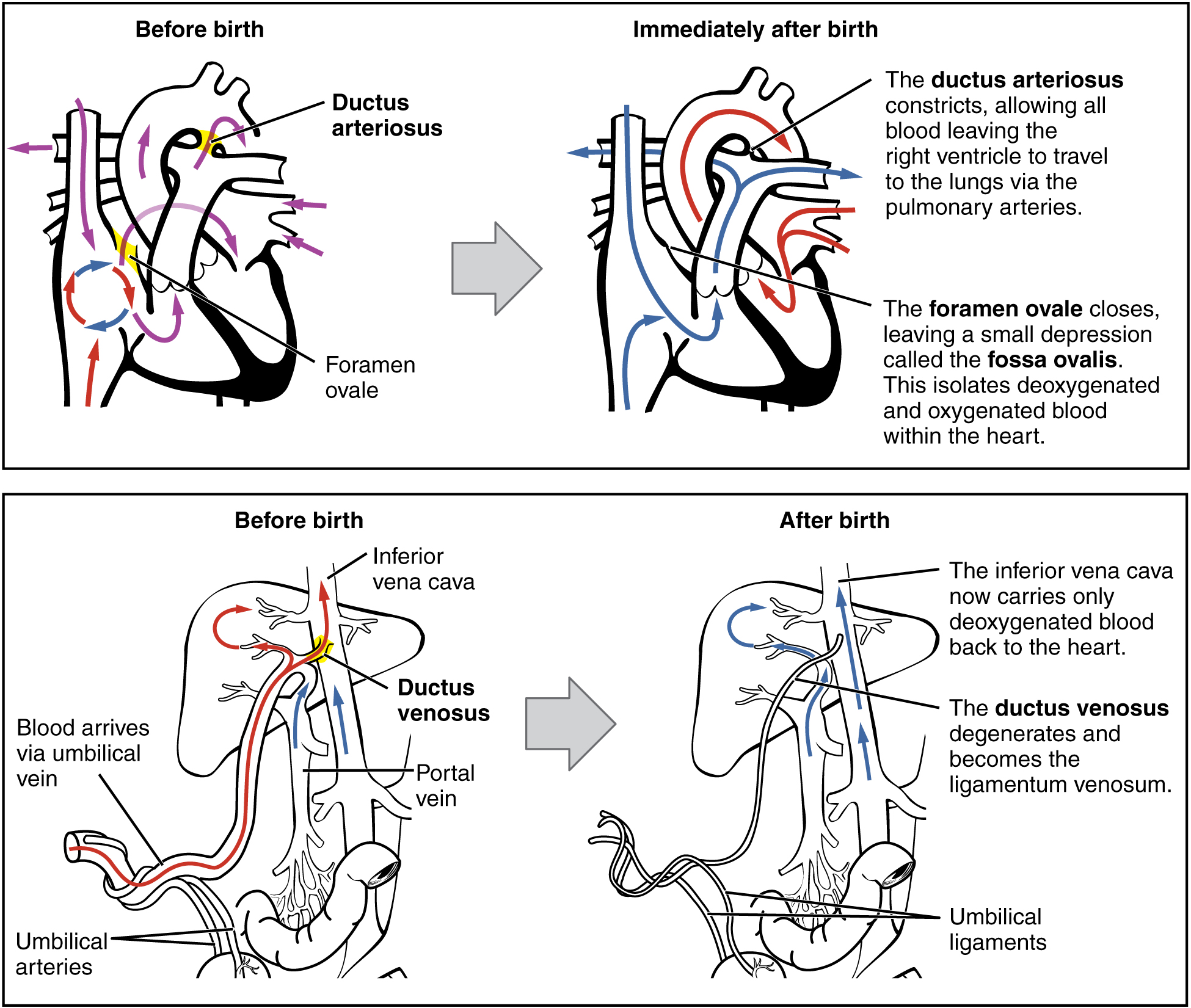 This figure illustrates the circulatory system in a newborn. The left image in both panels shows the blood circulation before birth and the right image shows the blood circulation after birth.
