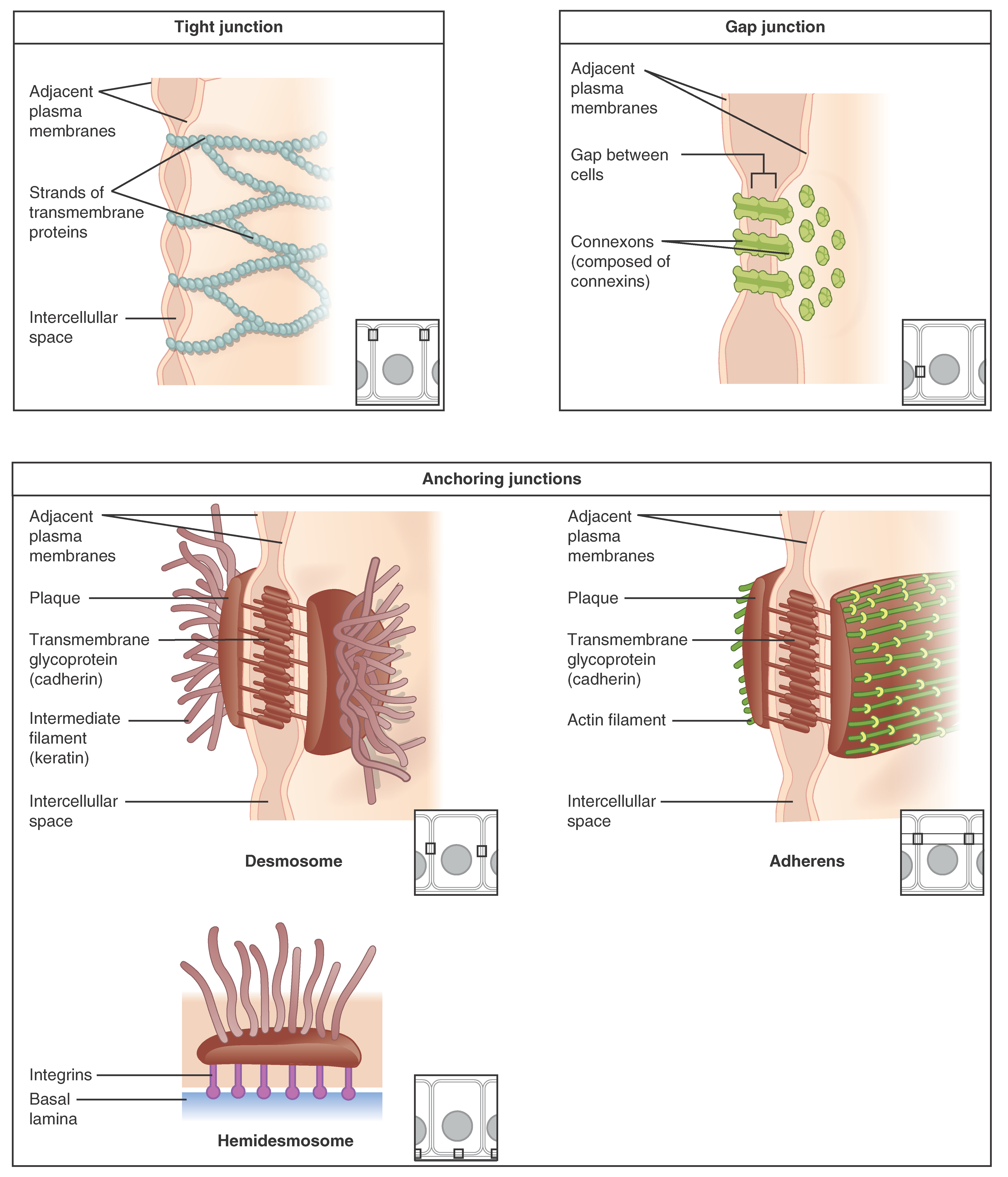 These three illustrations each show the edges of two vertical cell membranes. The cell membranes are viewed partially from the side so that the inside edge of the right cell membrane is visible. The upper left image shows a tight junction. The two cell membranes are bound by transmembrane protein strands. The proteins travel the inside edge of the right cell membrane and cross over to the left cell membrane, cinching the two membranes together. The cell membranes are still somewhat separated in between neighboring strands, creating intercellular spaces. The upper right diagram shows a gap junction. The gap junctions are composed of two interlocking connexins, which are round, hollow tubes that extend through the cell membranes. Two connexins, one from the left cell membrane and the other from the right cell membrane, meet between the two cells, forming a connexon. Even at the site of the connexon, there is a small gap between the cell membranes. On the inside edge of the right cell membrane, the gap junction appears as a depression. Three connexins are embedded into the membranes like buttons on a shirt. The bottom images show the three types of anchoring junctions. The left image shows a desmosome. Here, the inside edge of both the right and left cell membranes have brown, round plaques. Each plaque has tentacle-like intermediate filaments (keratin) that extend into each cell's cytoplasm. The two plaques are connected across the intercellular space by several interlocking transmembrane glycoproteins (cadherin). The connected glycoproteins look similar to a zipped-up zipper between the right and left cell membranes. The right image shows an adheren. These are similar to desmosomes, with two plaques on the inside edge of each cell membrane connected across the intercellular space by glycoproteins. However, the plaques do not contain the tentacle-like intermediate filaments branching into the cytoplasm. Instead, the plaques are ribbed with green actin filaments. The f
