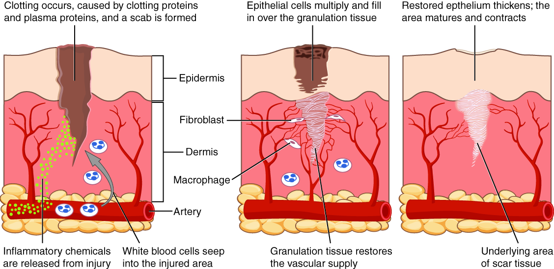 This diagram shows the wound healing process in three steps. Each step shows a cross section of wounded skin. The wound extends through the upper layer of skin, labeled the epidermis, about halfway through the dermis, the lower deeper layer of skin. At the base of the cross section, an artery runs horizontally through fatty tissue below the dermis. Several small capillaries branch from the artery and travel into the upper regions of the dermis. In the first step of healing, inflammatory chemicals, symbolized with green dots, are released from the injury site. The chemicals travel through the dermis and enter the horizontal artery. Clotting proteins and plasma proteins also initiate clotting within the wound, forming a scab, which is clearly visible in the second step as a black and brown mass covering the upper regions of the wound. Below the scab, epithelial cells in the epidermis multiply and begin to fill in the wound. In the dermis, three fibrocytes are binding the wound area with white tissue. This tissue is granulation tissue. Laying down granulation tissue restores the vascular supply, as indicated by capillaries growing around the wounded area. In the third step, the scab is gone and the epidermis has grown in and contracted to seal the upper portion of the wound. In the deeper regions, the wound is now completely filled with granulation tissue with is now considered scar tissue.
