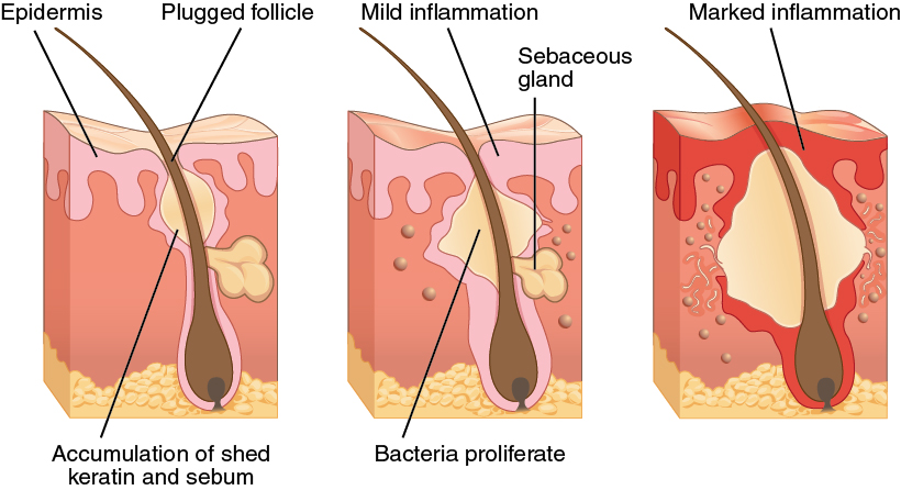 Three diagrams show the progression of acne in three steps from left to right. All three depict a cross section of skin containing a hair follicle. In the left diagram, the follicle has a swollen area about halfway up the hair shaft, just above a sebaceous gland. The follicle is plugged with sebum, depicted as a yellowish substance. In the middle diagram, the follicle has become more swollen, as a label indicates that bacteria are reproducing within the blockage. The surrounding epidermis becomes inflamed as a result of the bacterial infection. In the rightmost image, the blockage has swollen to about five times its original size and has broken the surrounding epidermis, which is now red and inflamed.