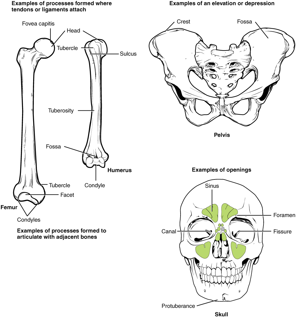 """This illustration contains three diagrams. The left diagram is titled examples of processes formed where tendons or ligaments attach. The image shows an anterior view of the femur and an anterior view of the humerus. For the femur, the distal epiphysis contains a smaller lateral bulge and a larger medial bulge. These are examples of condyles. The inner halves of the two condyles as well as the groove between them compose a facet. An oval-shaped ridge on the medial surface of the distal metaphysis is an example of a tubercle. On the proximal epiphysis of the femur, the large knob that attaches to the hip socket is an example of a head. The tip of the head contains a small depression, an example of a fovea called the fovea capitis. On the humerus, the distal epiphysis contains a central depression that is an example of a fossa. Two condyles are located on the right and left sides of the fossa. The diaphysis of the humerus contains a small ridge running up the shaft that is an example of a tuberosity. The proximal epiphysis of the humerus contains a lateral and a medial bulge that are both examples of tubercles. Finally, a narrow groove runs from the center of the proximal metaphysis in between the medial and lateral condyles. This is an example of a sulcus. The middle image is entitled elevations or depressions. It shows an anterior view of the hip bones. The hip bones are shaped like two wings that join at the bottom. The crest along the upper edge of each hip bones, at the tip of each """"wing"""" is an example of an elevation. A depression on the inner surface of both hip bones just under the crest is called out as a fossa. The right image is entitled examples of openings and shows an anterior view of the skull. The bone underlying the chin is an example of a protuberance while two small holes above each eye socket are examples of foramen. Five green sinuses surround the nose cavity are colored green. These are sinuses because they are hollowed out cavities within the sk"""