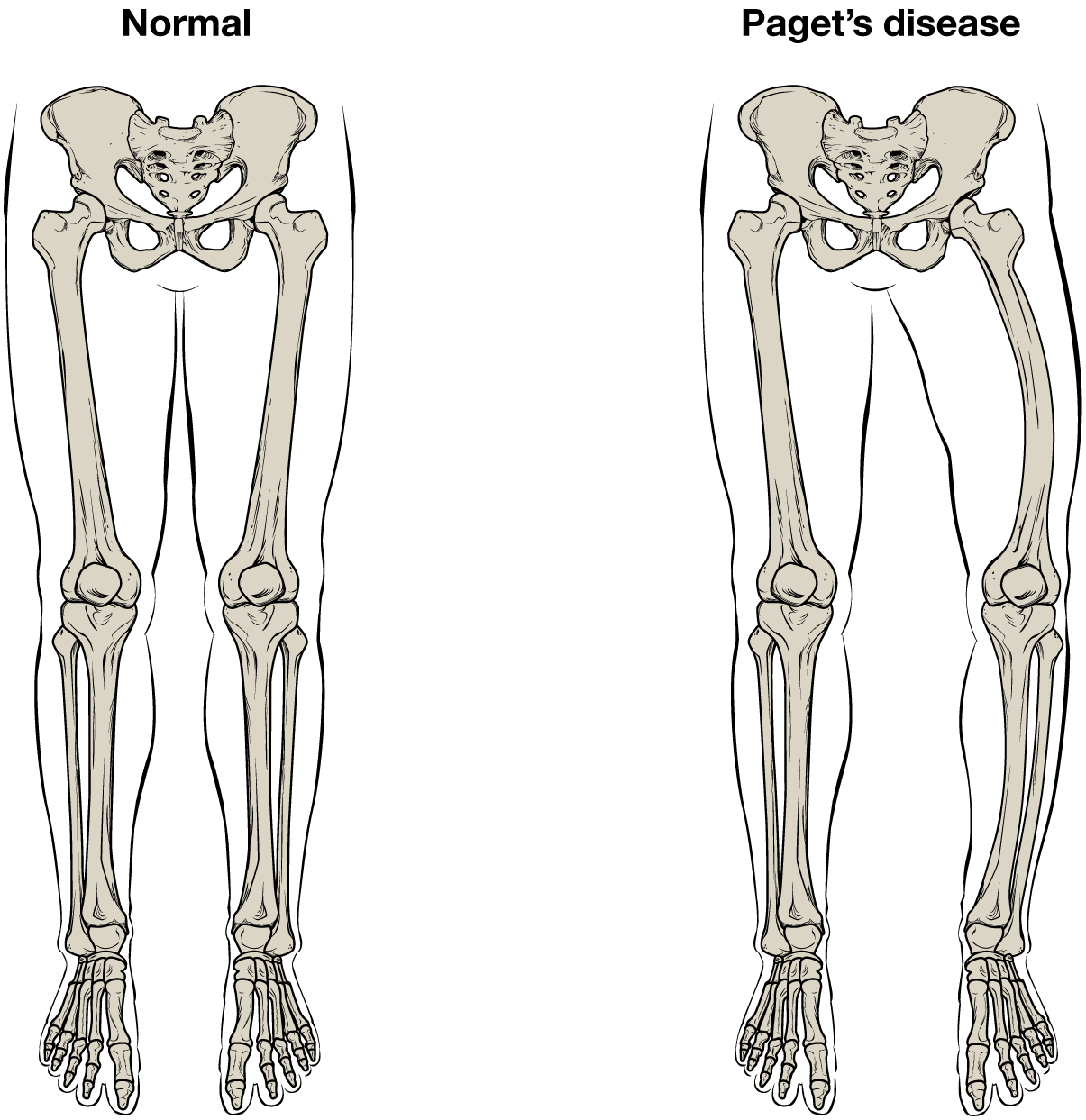 This illustration shows the normal skeletal structure of the legs from an anterior view. The flesh of the legs and feet are outlined around the skeleton for reference. A second illustration shows the legs of someone with Paget's disease. The affected person's left femur is curved outward, causing the left leg to be bowed and shorter than the right leg.