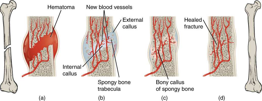 This illustration shows a left to right progression of bone repair. The break is shown in the leftmost image, where the femur has an oblique, closed fracture in the middle of its shaft. The next image magnifies the break, showing that blood has filled the area between the broken bones. Blood has also filled in around the lateral and medial sides of the break. The influx of blood causes the broken area to swell, creating a hematoma. In the next image, the hematoma has been replaced with an external callus between the two broken ends. Within the internal callus, the blood vessels have reconnected and some spongy bone has regenerated in the gap between the two bone halves. In the next image, spongy bone has completely regenerated, connecting the two broken ends, referred to as the bony callus. The external callus still remains on the lateral and medial sides of the break, as the compact bone has not yet regenerated. In the final image, the compact bone has fully regenerated, encapsulating the bony callus and completely reconnecting the two bone halves. The bone has a slight bulge at the location of the healed fracture, which is clearly shown in the final image, which shows a zoomed out image of the completely healed femur.