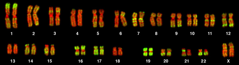 This is a karyotype of a human female. There are 22 homologous pairs of chromosomes and a pair of X chromosomes.