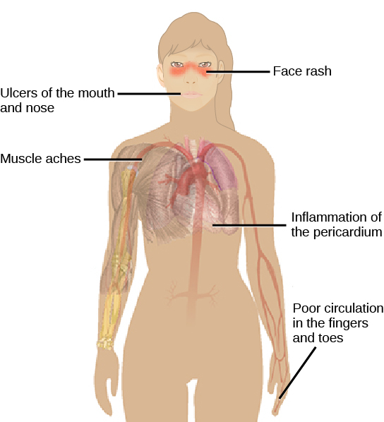 Illustration shows the symptoms of lupus, which include a distinctive face rash across the bridge of the nose and the cheeks, ulcers in the mouth and nose, inflammation of the pericardium, muscle aches and poor circulation in the fingers and toes.