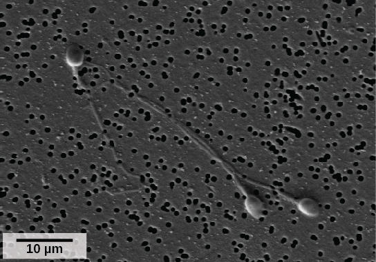 Micrograph shows human sperm, which have an oval head about 3 microns across and a very long flagellum.