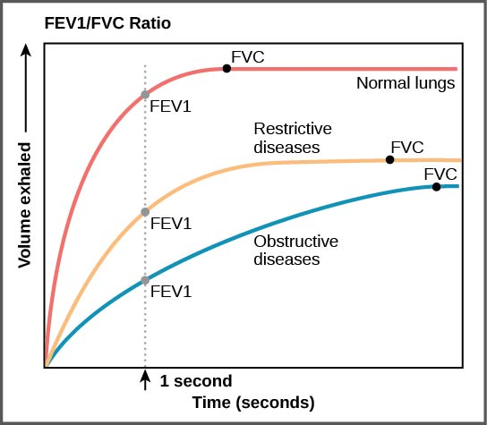 Figure39.18. The ratio of FEV1 (the amount of air that can be forcibly exhaled in one second after taking a deep breath) to FVC (the total amount of air that can be forcibly exhaled) can be used to diagnose whether a person has restrictive or obstructive lung disease. In restrictive lung disease, FVC is reduced but airways are not obstructed, so the person is able to expel air reasonably fast. In obstructive lung disease, airway obstruction results in slow exhalation as well as reduced FVC. Thus, the FEV1/FVC ratio is lower in persons with obstructive lung disease (less than 69 percent) than in persons with restrictive disease (88 to 90 percent).
