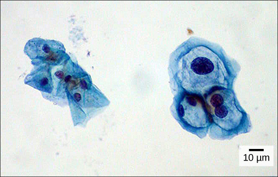 Both normal cells and cells infected with HPV have an irregular, round shape and a well-defined nucleus. Infected cells, however, are two to three times as large as uninfected cells, and some have two nuclei.