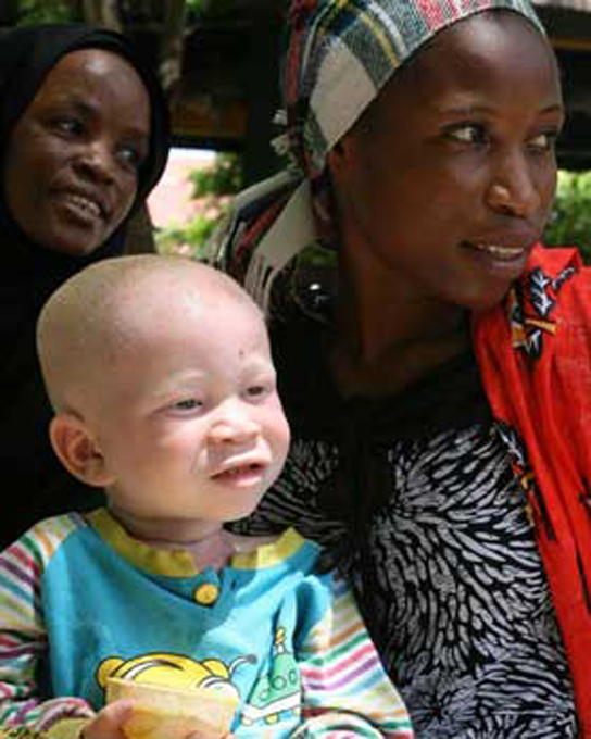Photo shows an albino child with his black mother.