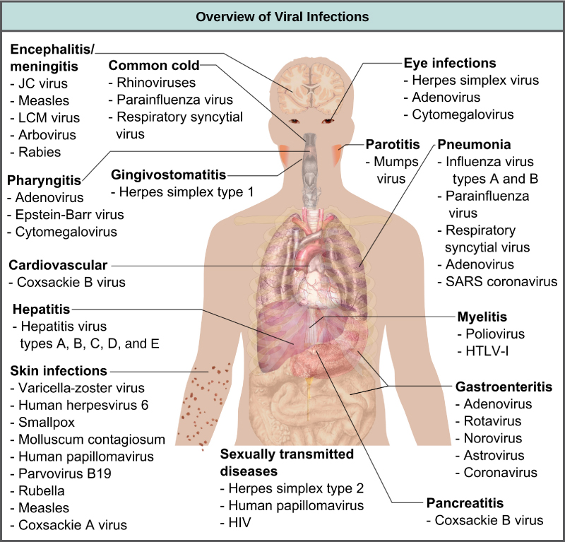 The illustration shows an overview of human viral diseases. Viruses that cause encephalitis or meningitis, or inflammation of the brain and surrounding tissues, include measles, arbovirus, rabies, J C virus, and L C M virus. The common cold is caused by rhinovirus, parainfluenza virus, and respiratory syncytial virus. Eye infections are caused by herpesvirus, adenovirus, and cytomegalovirus. Pharyngitis, or inflammation of the pharynx, is caused by adenovirus, Epstein-Barr virus, and cytomegalovirus. Parotitis, or inflammation of the parotid glands, is caused by mumps virus. Gingivostomatitis, or inflammation of the oral mucosa, is caused by herpes simplex type I virus. Pneumonia is caused by influenza virus types A and B, parainfluenza virus, respiratory syncytial virus, adenovirus, and SARS coronavirus. Cardiovascular problems are caused by coxsackie B virus. Hepatitis is caused by hepatitis virus types A, B, C, D, and E. Myelitis in the spinal cord is caused by poliovirus and H L T V dash 1. Skin infections are caused by varicella-zoster virus, human herpesvirus 6, smallpox, molluscum contagiosum, human papillomavirus, parvovirus B 19, rubella, measles, and coxsackie A virus. Gastroenteritis, or digestive disease, is caused by adenovirus, rotavirus, norovirus, astrovirus, and coronavirus. Sexually transmitted diseases are caused by herpes simplex type 2, human papillomavirus, and H I V. Pancreatitis B is caused by coxsackie B virus.