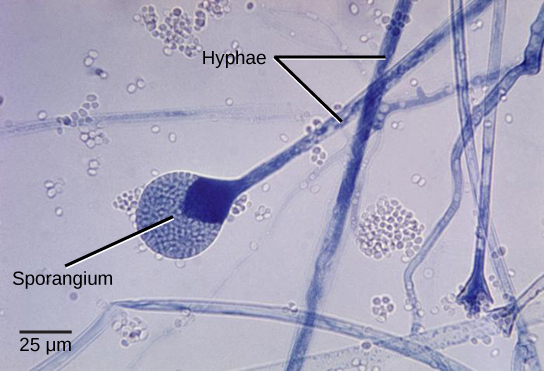 Micrograph shows several long, thread-like hyphae stained blue. One hypha has a round sporangium, about 35 microns in diameter, at the tip. The sporangium is dark blue at the neck, and grainy white and blue elsewhere. Spores that have already been released appear as small white ovals.