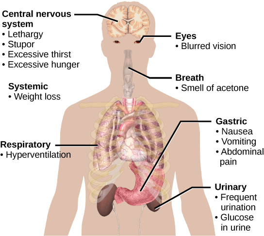 Symptoms of diabetes that affect the central nervous system include excessive thirst, excessive hunger, lethargy and stupor.  It affects the eyes via blurred vision.  A systemic issue is weight loss. It causes breath that smells like acetone, and affects the respiratory system through hyperventilation.  Some of the gastric issues caused are nausea, vomiting, and abdominal pain.  The urinary issues caused include frequent urination, and glucose in the urine.