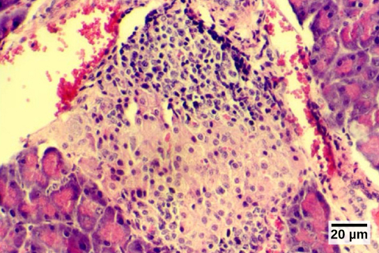 Micrograph shows purple-stained cells in a white tissue. The white tissue is surrounded by tissue that stains pink.