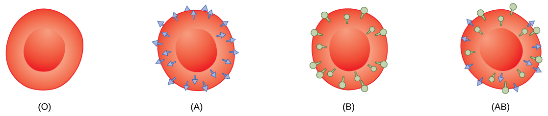 Type O, type A, type B and type A B red blood cells are shown. Type O cells do not have any antigens on their surface. Type A cells have A antigen on their surface. Type B cells have B antigen on their surface. Type A B cells have both antigens on their surface.  The antigens appear as small protrusions on the cell surface.