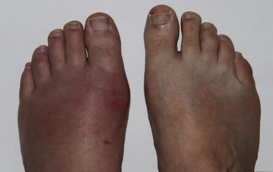 Photo shows a person's feet.  One foot is swollen and red, while the other appears normal.