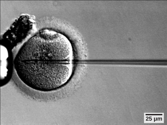 Micrograph shows a needle injecting sperm into an egg.