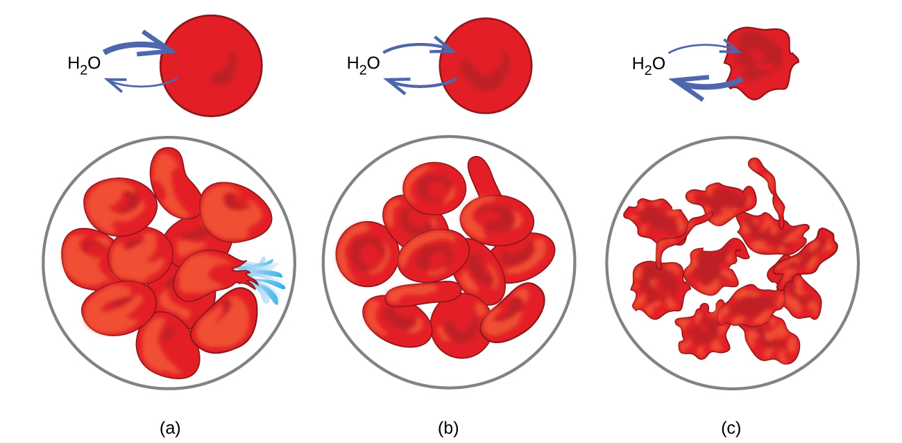 This figure shows three scenarios relating to red blood cell membranes. In a, H subscript 2 O has two arrows drawn from it pointing into a red disk. Beneath it in a circle are eleven similar disks with a bulging appearance, one of which appears to have burst with blue liquid erupting from it. In b, the image is similar except that rather than having two arrows pointing into the red disk, one points in and a second points out toward the H subscript 2 O. In the circle beneath, twelve of the red disks are present. In c, both arrows are drawn from a red shriveled disk toward the H subscript 2 O. In the circle below, twelve shriveled disks are shown.