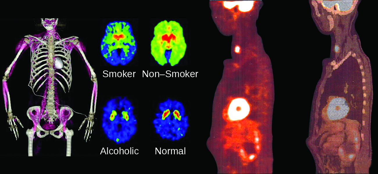 """An image shows four sets of medical pictures. The first is the torso and arms of a human skeleton with purple shading in the muscular regions. The second is a set of four images; the top left, labeled """"Smoker,"""" shows an oval-shaped image that is blue on the outside rim, green as you move inward, and bright red near the center while the top right, labeled """"Non-Smoker,"""" shows an oval-shaped image that is shaded bright green over most of the image and bright red near the center. The lower left image of the four, labeled """"Alcoholic,"""" shows an oval-shaped image that is almost entirely blue with two small yellow-rimmed, red dots near the upper middle section while the lower right image, labeled """"Normal,"""" looks very similar to the lower left, but the red regions are slightly larger. The final image show two scans of a human torso that is turned to face to the side. The left scan has three bright yellow-white areas; one in the throat, one in the chest and one in the head. The right scan is the same as the left except the bright regions are dim and the internal organs are more clearly defined."""