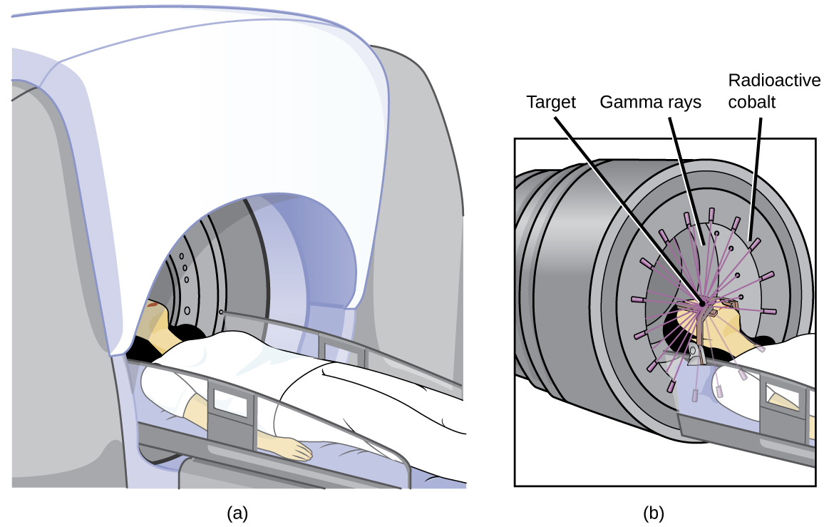 """Two diagrams are shown and labeled """"a"""" and """"b."""" Diagram a shows a woman lying on a horizontal table with is being inserted into a dome-shaped machine. Diagram b shows a closer view of the woman's head and upper torso in the machine. A series of beams, labeled """"Gamma rays,"""" are shown to exit from slits in the edges of the machine, labeled """"Radioactive cobalt,"""" and to penetrate her head, which is labeled """"Target."""""""