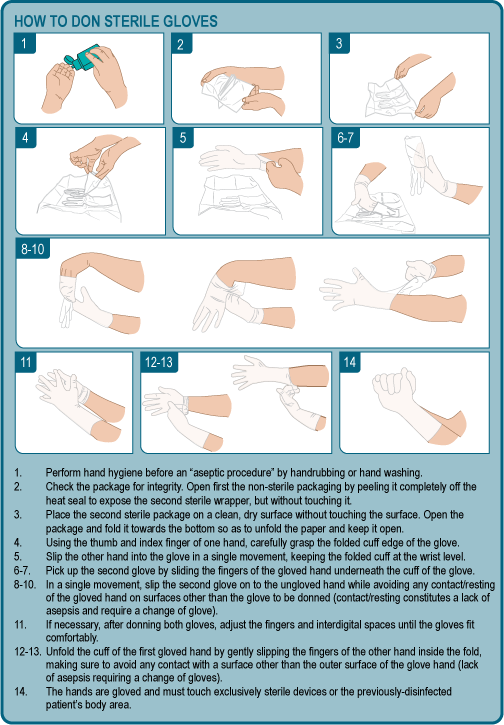 Don Sterile Gloves Clinical Procedures For Safer Patient