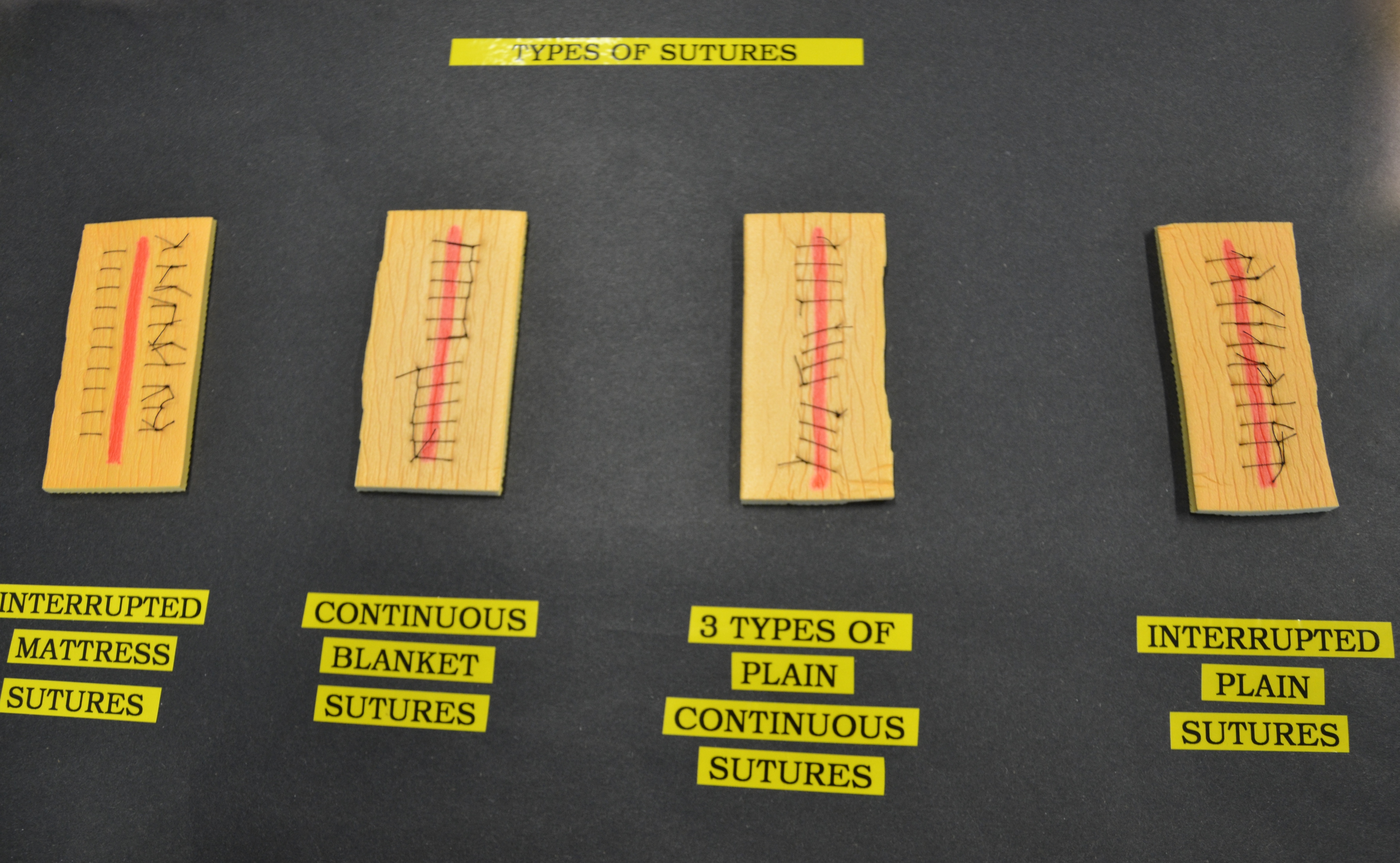 4 4 Suture Removal Clinical Procedures For Safer Patient